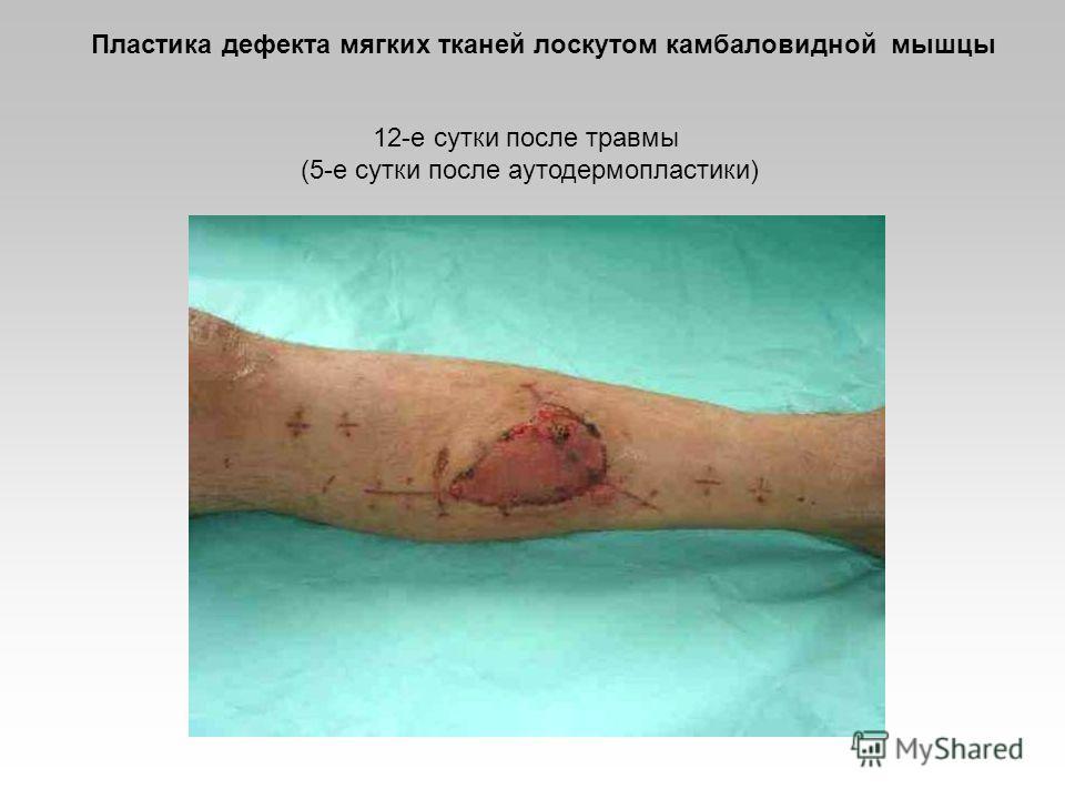 12-е сутки после травмы (5-е сутки после аутодермопластики) Пластика дефекта мягких тканей лоскутом камбаловидной мышцы