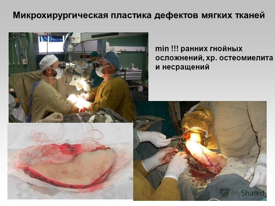 Микрохирургическая пластика дефектов мягких тканей min !!! ранних гнойных осложнений, хр. остеомиелита и несращений