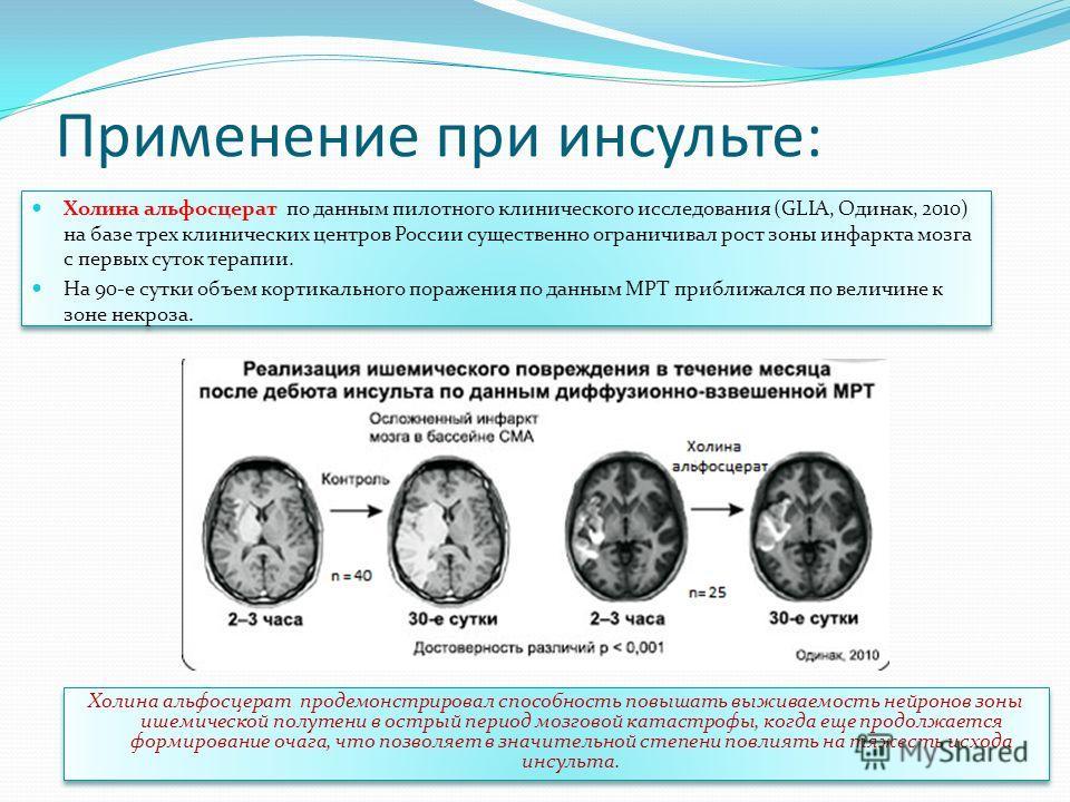 Применение при инсульте: Холина альфосцерат по данным пилотного клинического исследования (GLIA, Одинак, 2010) на базе трех клинических центров России существенно ограничивал рост зоны инфаркта мозга с первых суток терапии. На 90-е сутки объем кортик