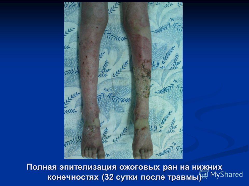Полная эпителизация ожоговых ран на нижних конечностях (32 сутки после травмы)