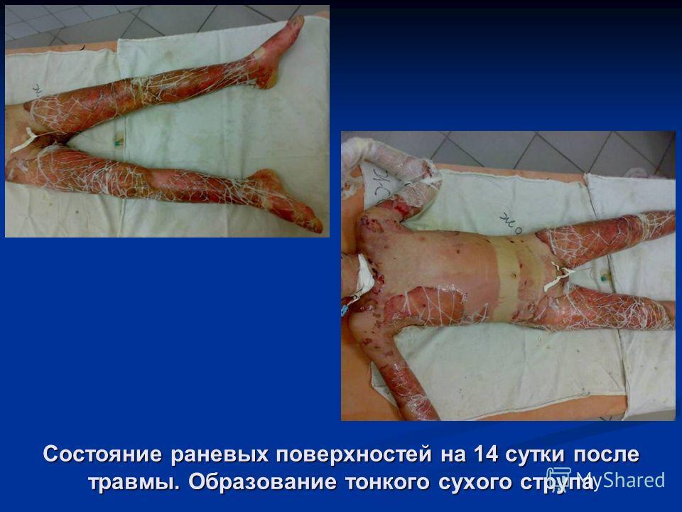 Состояние раневых поверхностей на 14 сутки после травмы. Образование тонкого сухого струпа