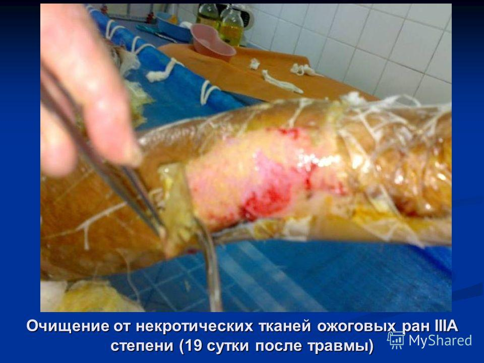 Очищение от некротических тканей ожоговых ран IIIА степени (19 сутки после травмы)