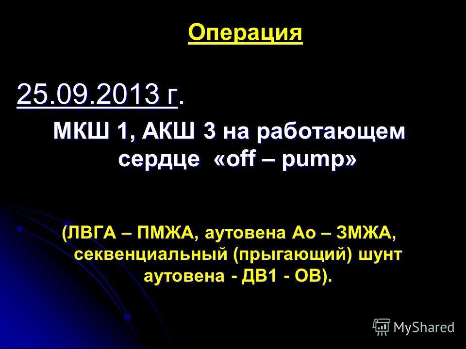 Операция 25.09.2013 г. МКШ 1, АКШ 3 на работающем сердце «off – pump» (ЛВГА – ПМЖА, аутовена Ао – ЗМЖА, секвенциальный (прыгающий) шунт аутовена - ДВ1 - ОВ).