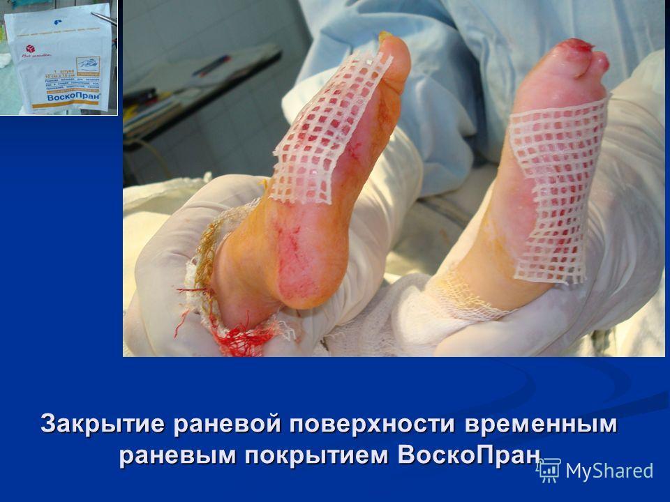 Закрытие раневой поверхности временным раневым покрытием ВоскоПран