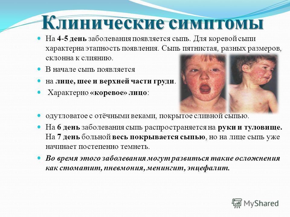 Клинические симптомы Инкубационный период 6-18 дней, колебания (3-4 недели) В клинической картине различают три периода: катаральный период; период сыпи; период пигментации Заболевание начинается остро, поднимается температура тела до 38 – 39 градусо