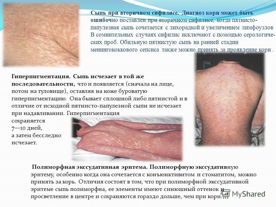 Дифференциальный диагноз. Дифференцировка проводится с: краснухой; скарлатиной; псевдотуберкулезом и кишечным иерсини- озом; энтеровирусной экзантемой; сывороточной болезнью; аллергической лекарственной сыпью; инфекционным мононуклеозом; менингококкц
