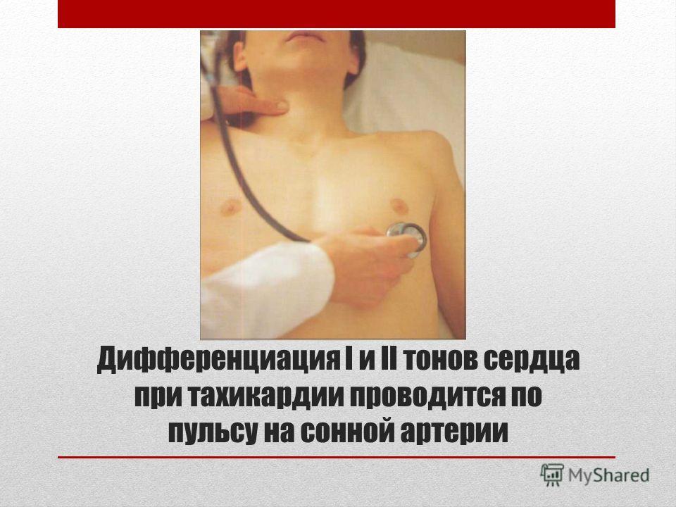 Дифференциация I и II тонов сердца при тахикардии проводится по пульсу на сонной артерии