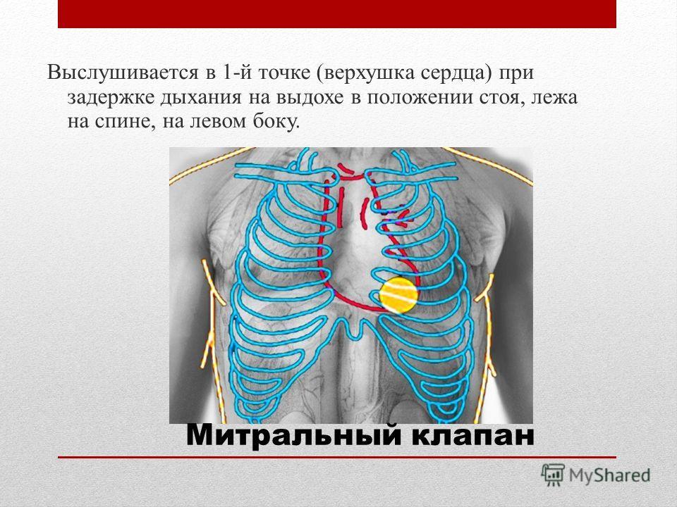 Выслушивается в 1-й точке (верхушка сердца) при задержке дыхания на выдохе в положении стоя, лежа на спине, на левом боку. Митральный клапан
