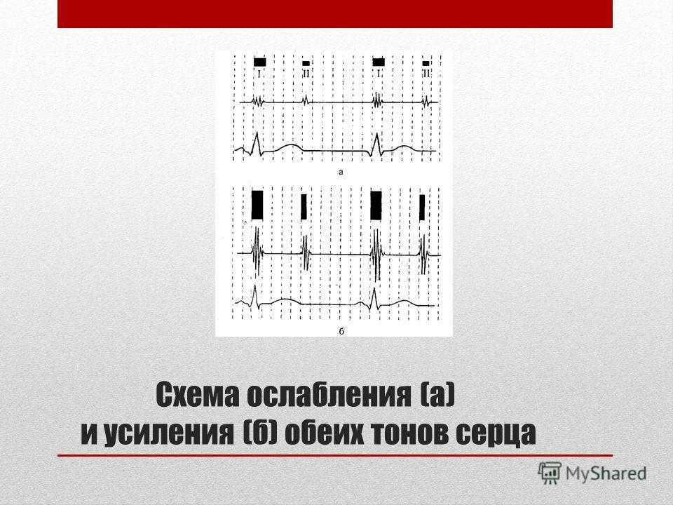 Схема ослабления (а) и усиления (б) обеих тонов серца