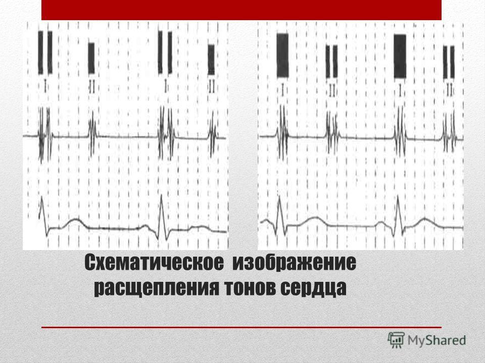 Схематическое изображение расщепления тонов сердца
