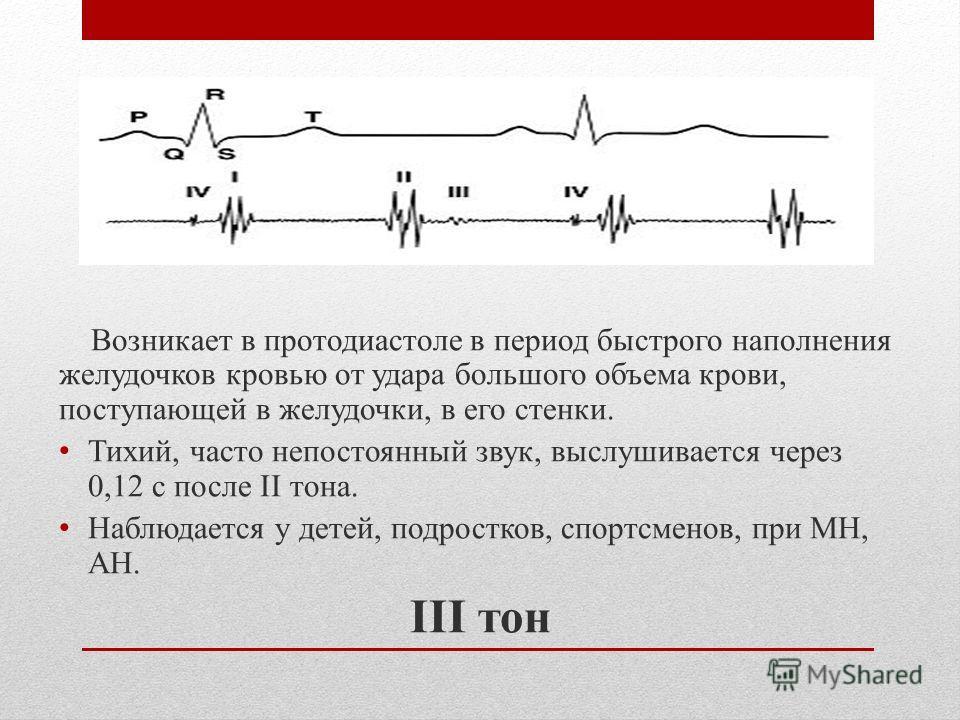 Возникает в протодиастоле в период быстрого наполнения желудочков кровью от удара большого объема крови, поступающей в желудочки, в его стенки. Тихий, часто непостоянный звук, выслушивается через 0,12 с после II тона. Наблюдается у детей, подростков,