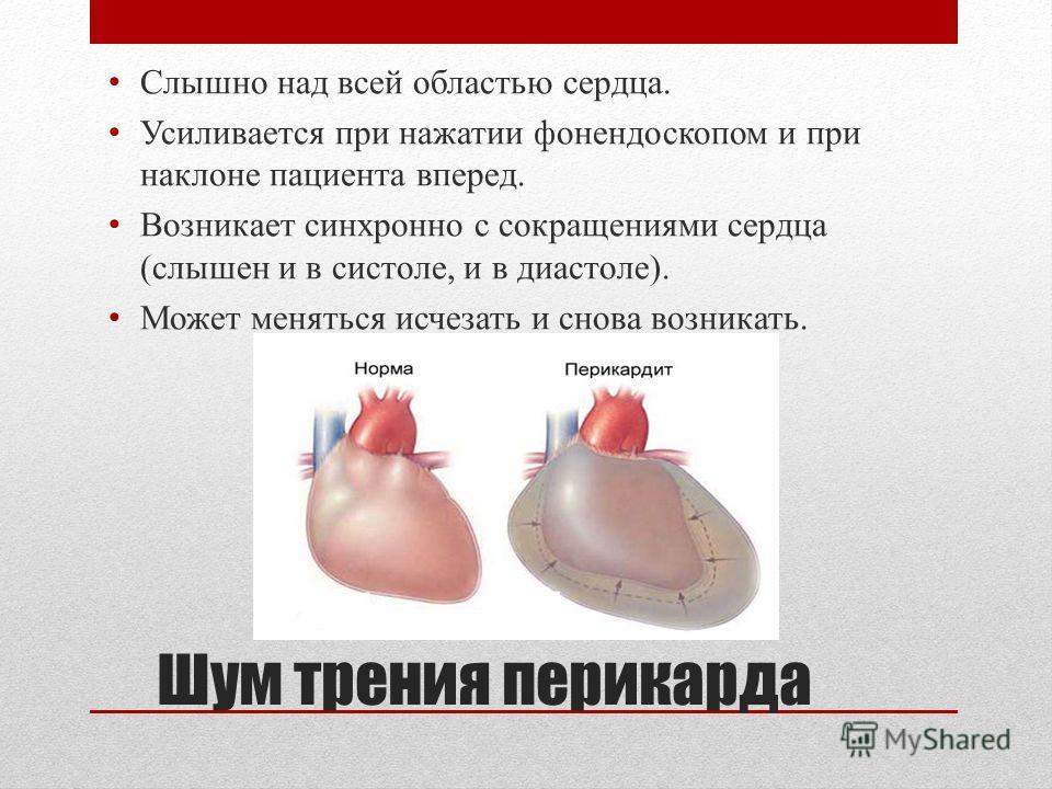 Шум трения перикарда Слышно над всей областью сердца. Усиливается при нажатии фонендоскопом и при наклоне пациента вперед. Возникает синхронно с сокращениями сердца (слышен и в систоле, и в диастоле). Может меняться исчезать и снова возникать.
