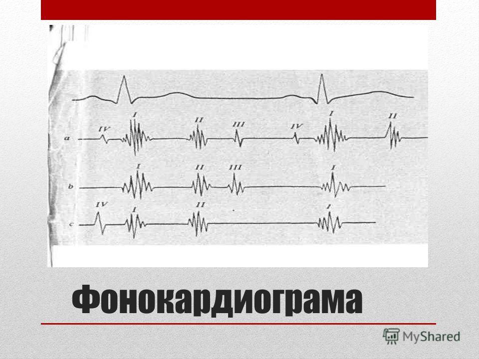 Фонокардиограма