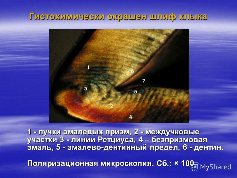 Гистохимически окрашен шлиф клыка 1 - пучки эмалевых призм, 2 - междучковые участки 3 - линии Ретциуса, 4 – безпризмовая эмаль, 5 - эмалево-дентинный предел, 6 - дентин. Поляризационная микроскопия. Сб.: × 100