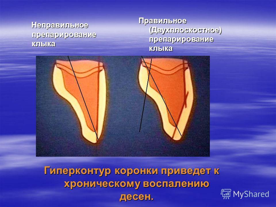 Неправильное препарирование клыка Неправильное препарирование клыка Правильное (Двухплоскостное) препарирование клыка Гиперконтур коронки приведет к хроническому воспалению десен.