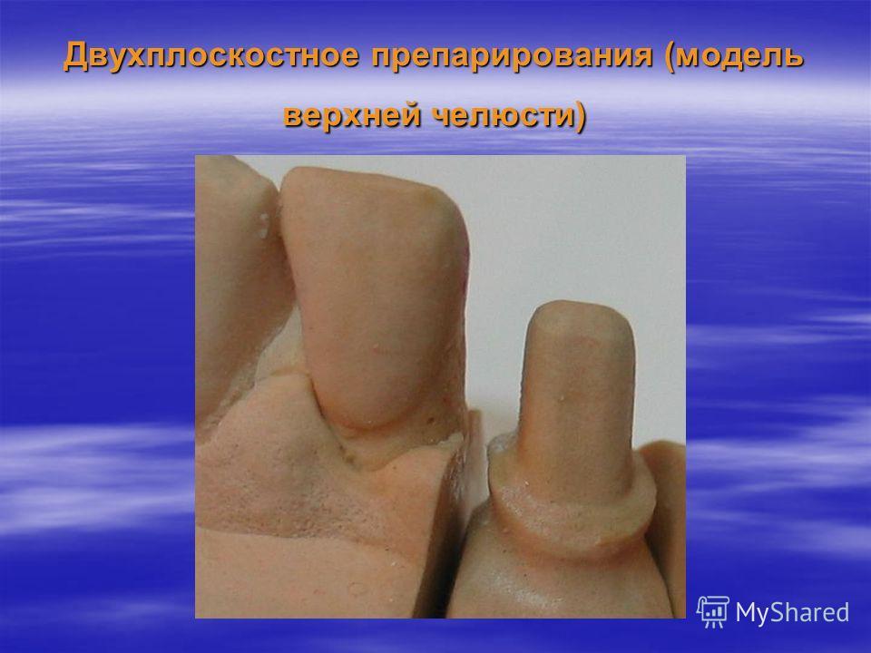 Двухплоскостное препарирования (модель верхней челюсти)