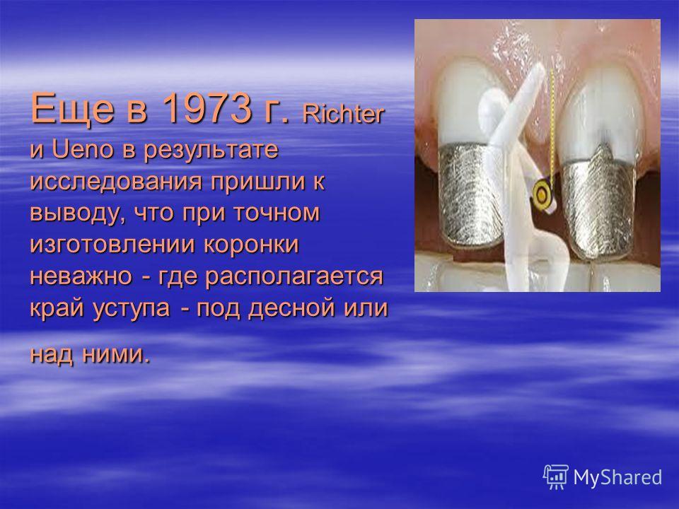 Еще в 1973 г. Richter и Ueno в результате исследования пришли к выводу, что при точном изготовлении коронки неважно - где располагается край уступа - под десной или над ними.