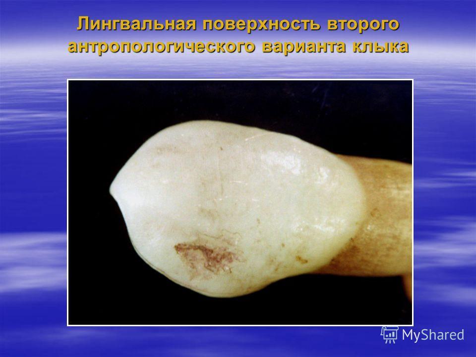 Лингвальная поверхность второго антропологического варианта клыка
