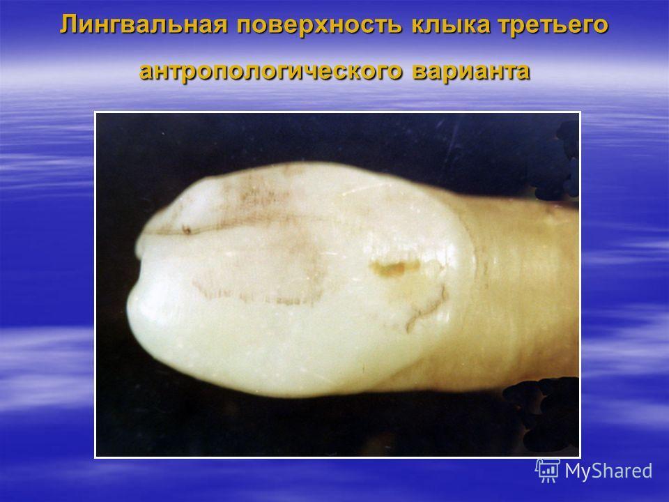 Лингвальная поверхность клыка третьего антропологического варианта