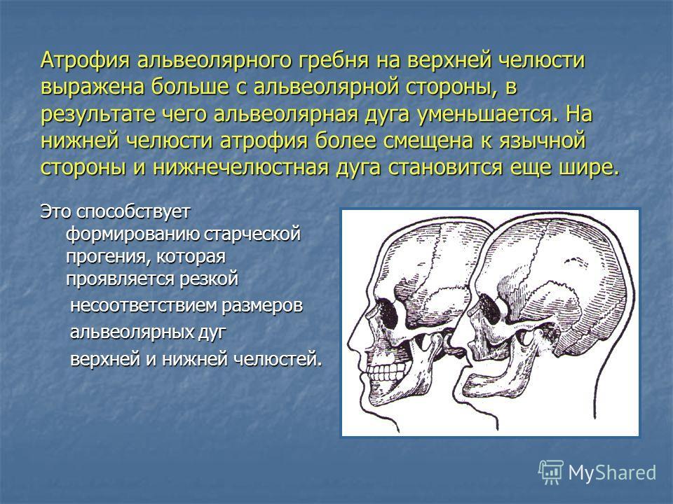 Атрофия альвеолярного гребня на верхней челюсти выражена больше с альвеолярной стороны, в результате чего альвеолярная дуга уменьшается. На нижней челюсти атрофия более смещена к язычной стороны и нижнечелюстная дуга становится еще шире. Это способст