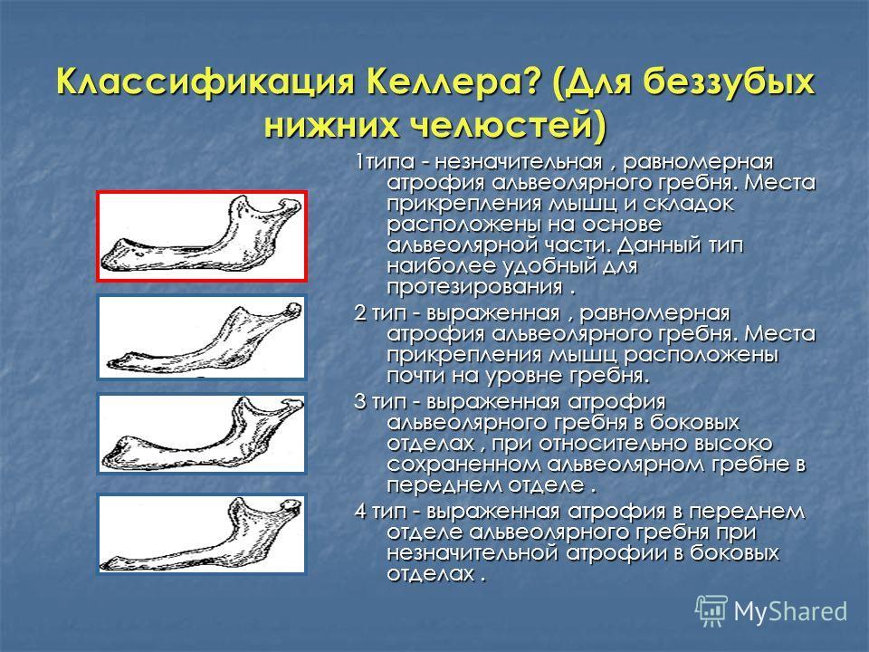 Классификация Келлера? (Для беззубых нижних челюстей) 1типа - незначительная, равномерная атрофия альвеолярного гребня. Места прикрепления мышц и складок расположены на основе альвеолярной части. Данный тип наиболее удобный для протезирования. 2 тип