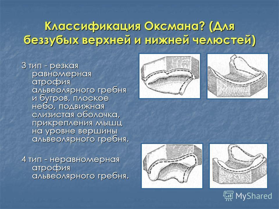 Классификация Оксмана? (Для беззубых верхней и нижней челюстей) 3 тип - резкая равномерная атрофия альвеолярного гребня и бугров, плоское небо, подвижная слизистая оболочка, прикрепления мышц на уровне вершины альвеолярного гребня. 4 тип - неравномер