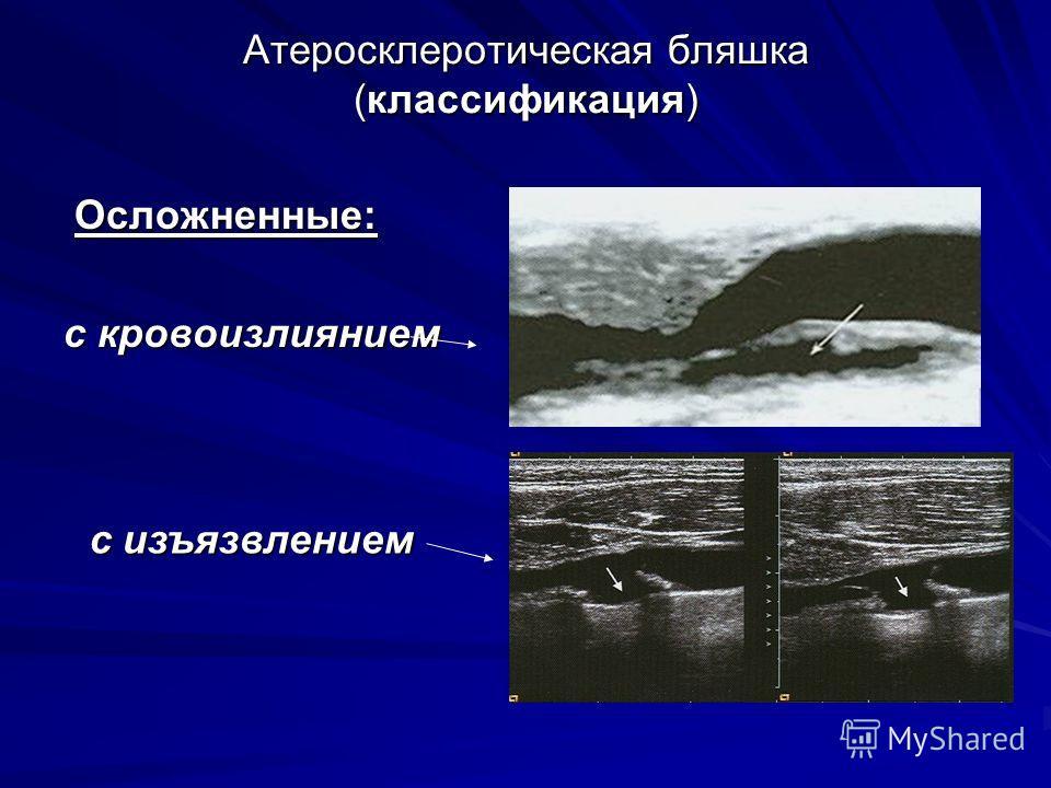 Атеросклеротическая бляшка (классификация) Осложненные: Осложненные: с кровоизлиянием с изъязвлением
