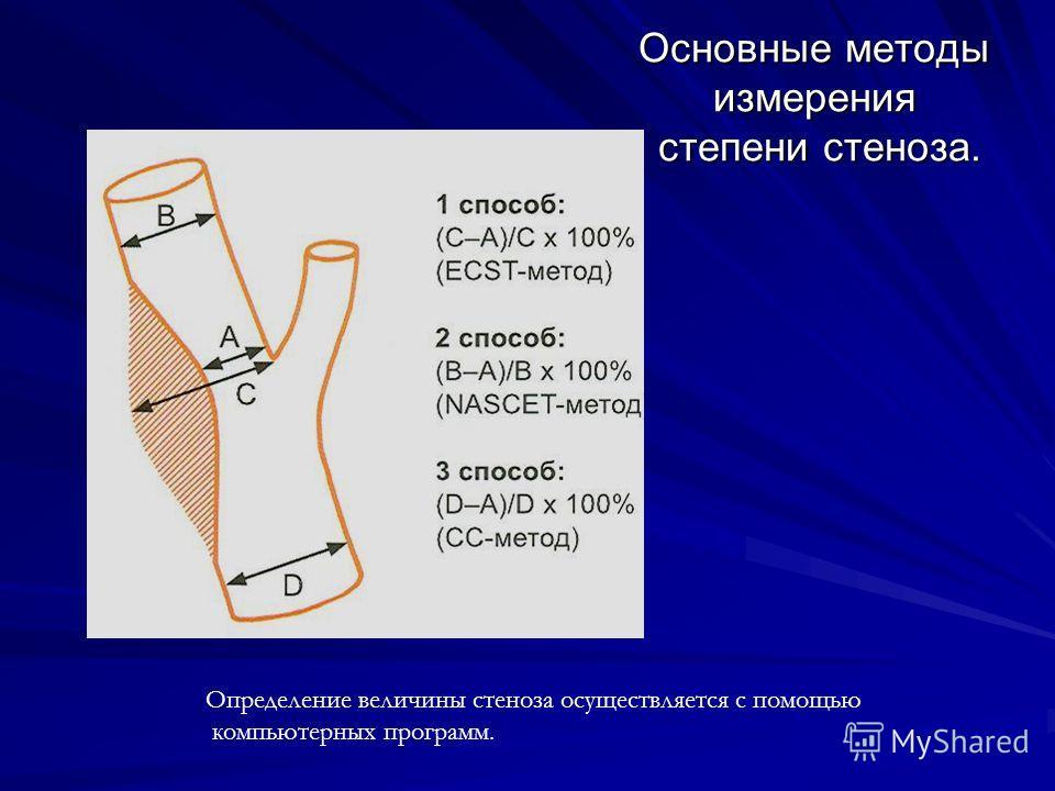 Основные методы измерения степени стеноза. Определение величины стеноза осуществляется с помощью компьютерных программ.