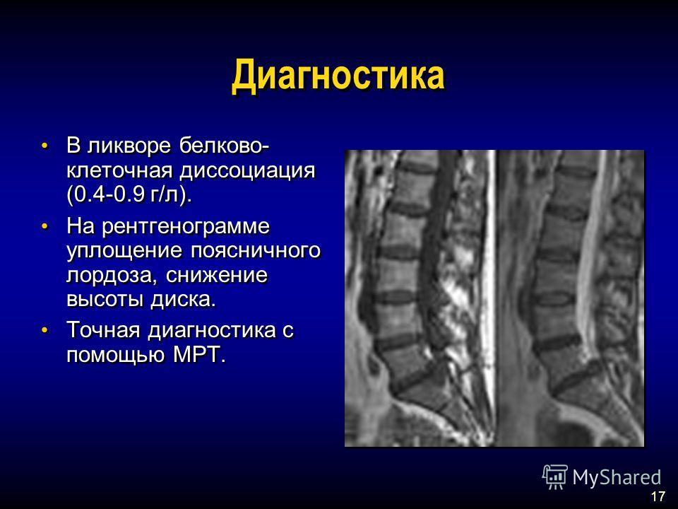 17 Диагностика В ликворе белково- клеточная диссоциация (0.4-0.9 г/л). На рентгенограмме уплощение поясничного лордоза, снижение высоты диска. Точная диагностика с помощью МРТ. В ликворе белково- клеточная диссоциация (0.4-0.9 г/л). На рентгенограмме