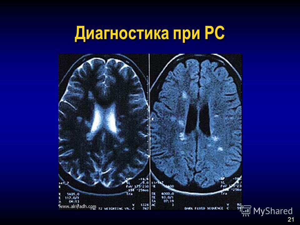 21 Диагностика при РС