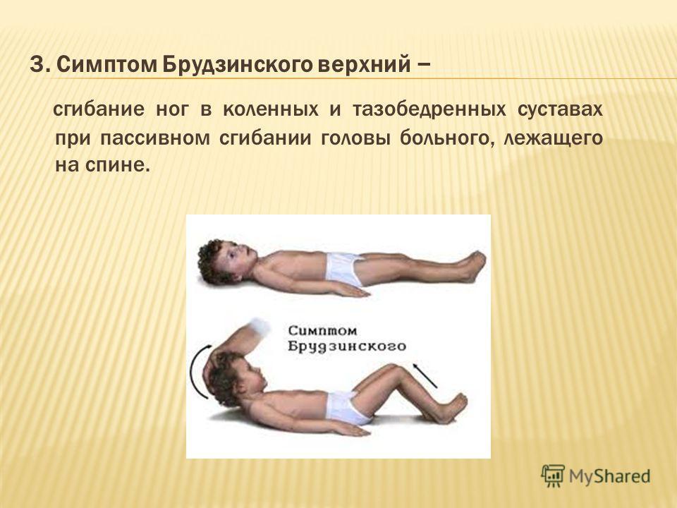3. Симптом Брудзинского верхний – сгибание ног в коленных и тазобедренных суставах при пассивном сгибании головы больного, лежащего на спине.