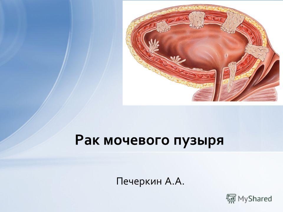 Печеркин А.А. Рак мочевого пузыря