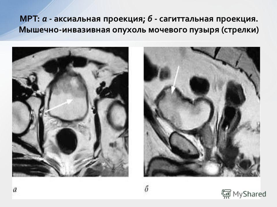 МРТ: а - аксиальная проекция; б - сагиттальная проекция. Мышечно-инвазивная опухоль мочевого пузыря (стрелки)