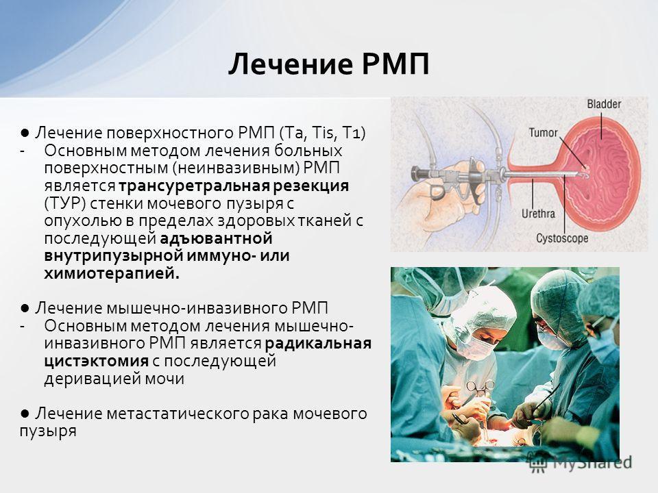 Лечение поверхностного РМП (Та, Тis, Т1) -Основным методом лечения больных поверхностным (неинвазивным) РМП является трансуретральная резекция (ТУР) стенки мочевого пузыря с опухолью в пределах здоровых тканей с последующей адъювантной внутрипузырной