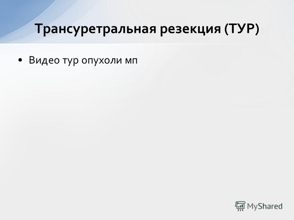 Трансуретральная резекция (ТУР) Видео тур опухоли мп