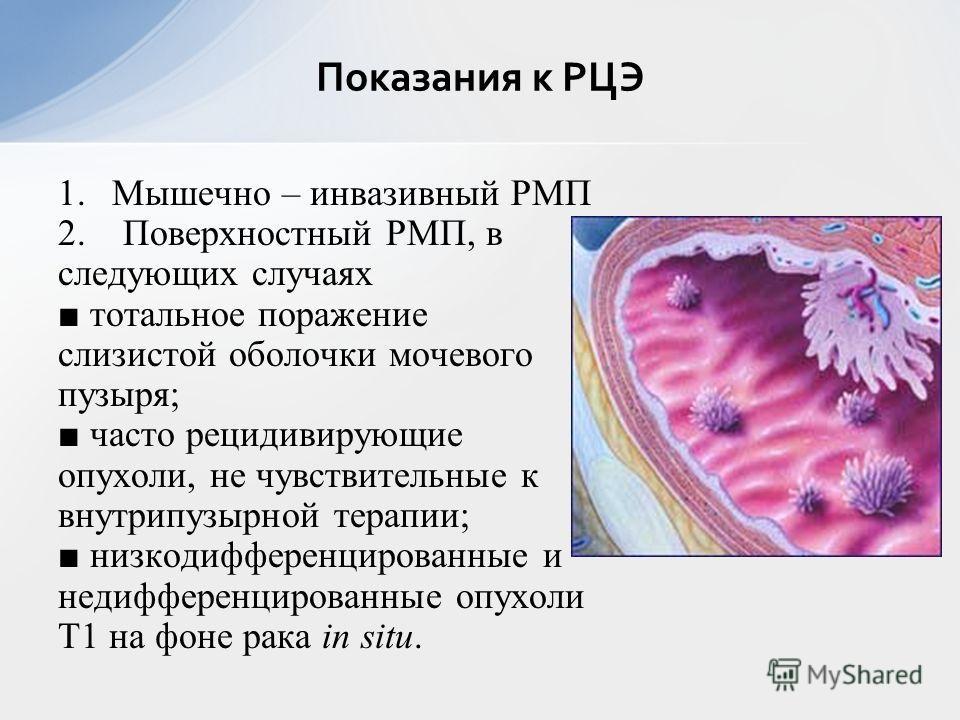 1.Мышечно – инвазивный РМП 2. Поверхностный РМП, в следующих случаях тотальное поражение слизистой оболочки мочевого пузыря; часто рецидивирующие опухоли, не чувствительные к внутрипузырной терапии; низкодифференцированные и недифференцированные опух