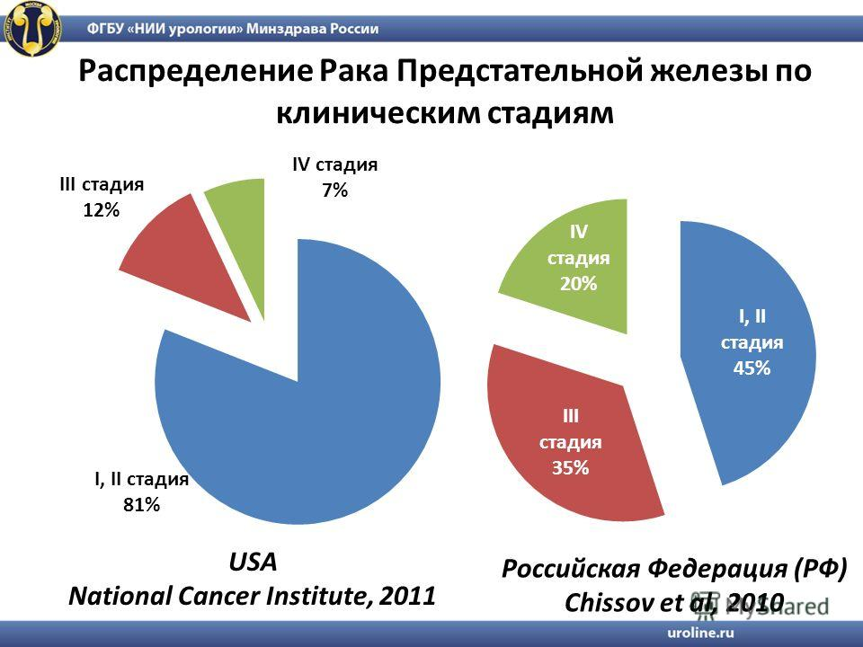 Распределение Рака Предстательной железы по клиническим стадиям USA National Cancer Institute, 2011 Российская Федерация (РФ) Chissov et al, 2010