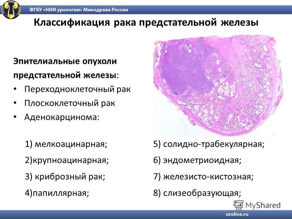 Аденокарцинома простаты прогноз