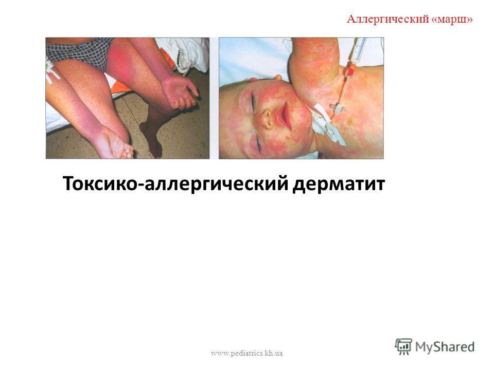 Токсико-аллергический дерматит Аллергический «марш» www.pediatrics.kh.ua