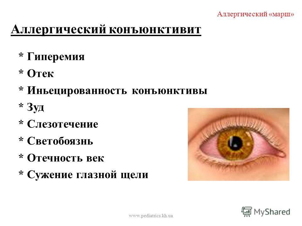 Аллергический конъюнктивит * Гиперемия * Отек * Иньецированность конъюнктивы * Зуд * Слезотечение * Светобоязнь * Отечность век * Сужение глазной щели Аллергический «марш» www.pediatrics.kh.ua