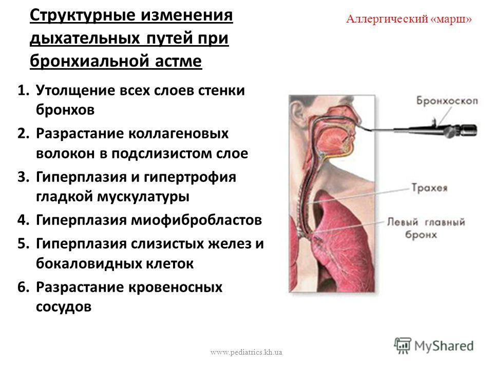 изменения происходящие при бронхиальной астме