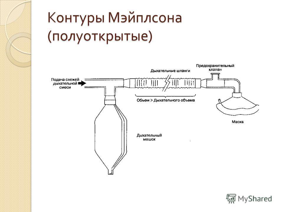 Контуры Мэйплсона ( полуоткрытые )