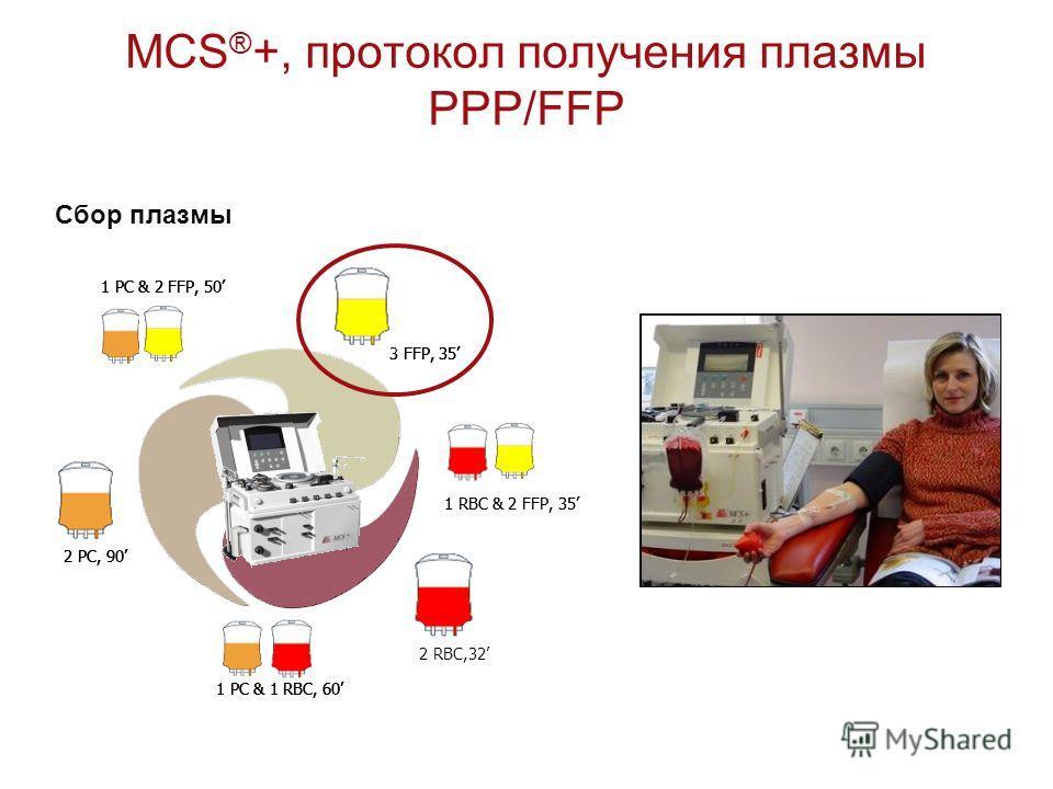 MCS ® +, протокол получения плазмы PPP/FFP Сбор плазмы 1 RBC & 2 FFP, 35 1 PC & 2 FFP, 50 1 PC & 1 RBC, 60 2 PC, 90 3 FFP, 35 1 RBC & 2 FFP, 35 1 PC & 2 FFP, 50 2 RBC,32 1 PC & 1 RBC, 60 2 PC, 90 3 FFP, 35 1 PC & 2 FFP, 50 1 PC & 1 RBC, 60 2 PC, 90 3
