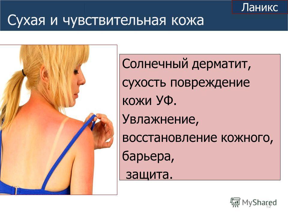Сухая и чувствительная кожа Солнечный дерматит, сухость повреждение кожи УФ. Увлажнение, восстановление кожного, барьера, защита. 13 Ланикс