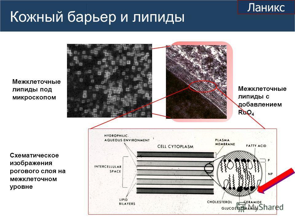 Кожный барьер и липиды Межклеточные липиды с добавлением RuO 4 Схематическое изображения рогового слоя на межклеточном уровне Межклеточные липиды под микроскопом Ланикс