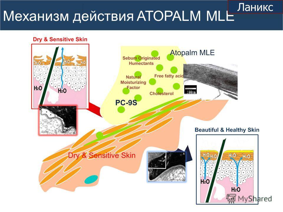 Механизм действия ATOPALM MLE Ланикс