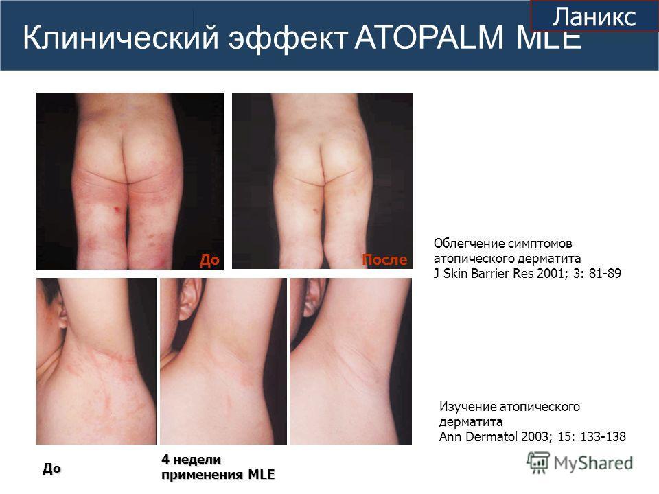 Клинический эффект ATOPALM MLE ДоПосле Облегчение симптомов атопического дерматита J Skin Barrier Res 2001; 3: 81-89 4 недели применения MLE Изучение атопического дерматита Ann Dermatol 2003; 15: 133-138 До Ланикс