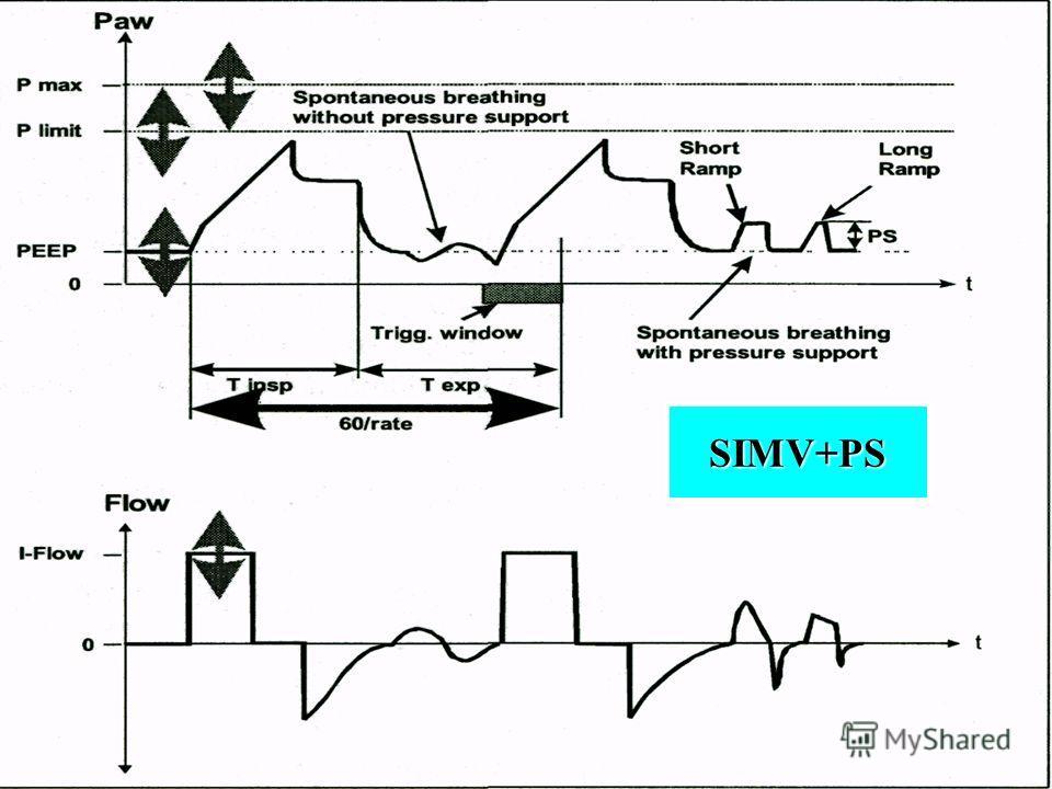 31 SIMV+PS