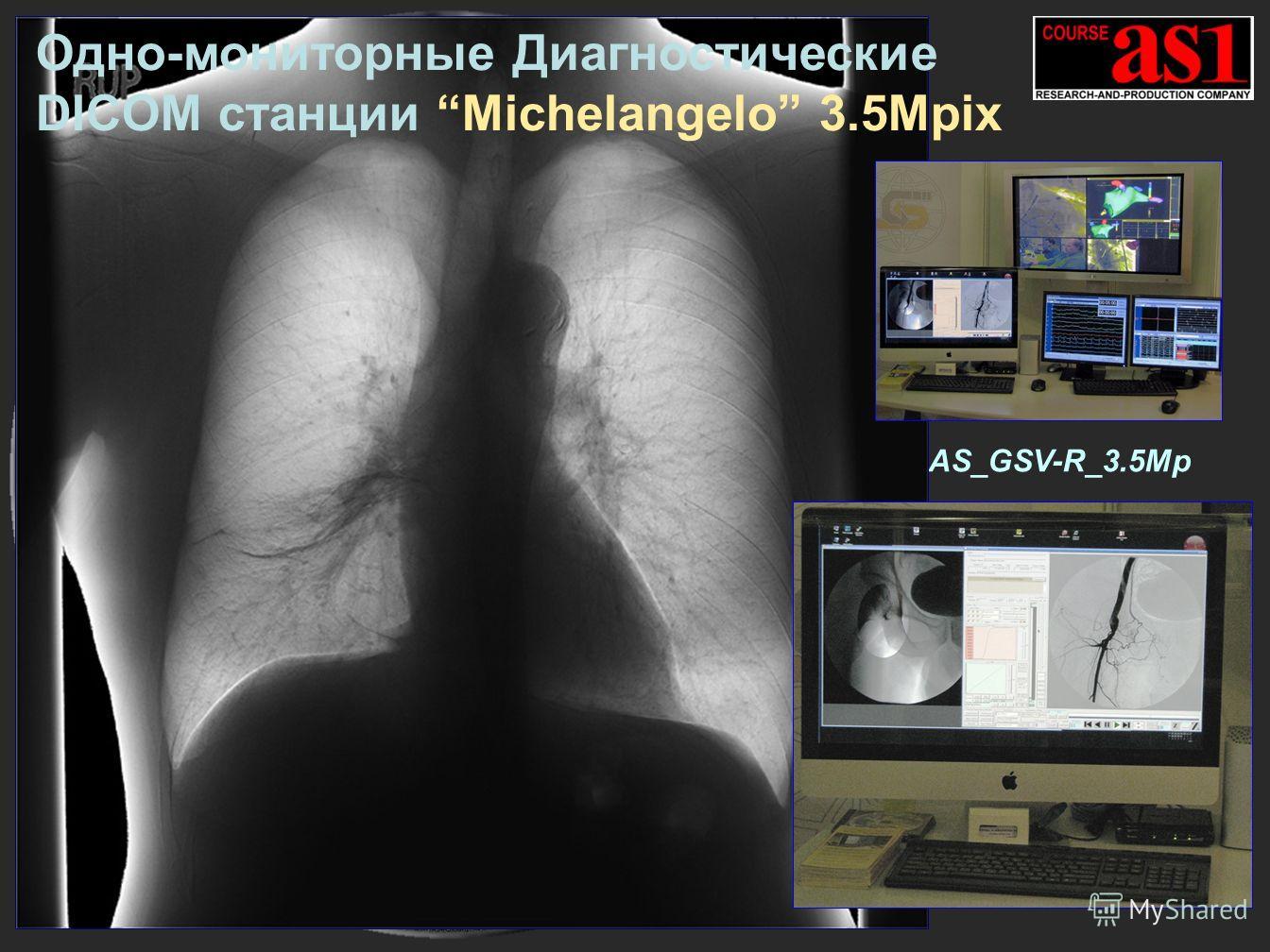 AS_GSV-R_3.5Mp Одно-мониторные Диагностические DICOM cтанции Michelangelo 3.5Mpix
