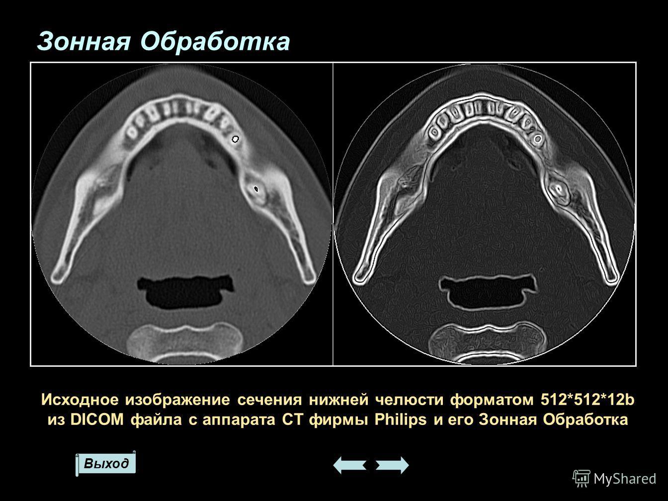Выход Исходное изображение сечения нижней челюсти форматом 512*512*12b из DICOM файла с аппарата CT фирмы Philips и его Зонная Обработка Зонная Обработка